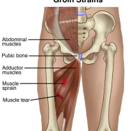 A Groin Pull By Any Other Name